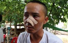 Vụ 3 cha con bị truy sát tại nhà: Nạn nhân kể lại giây phút cha bị chém gục