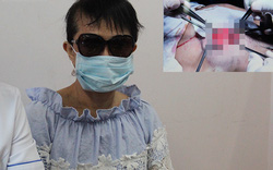 Tiêm silicon dạo, một phụ nữ ở Kiên Giang bị hoại tử, biến dạng cả ngực và mặt