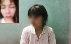 Cô gái bức xúc vì giúp đỡ người lạ rồi bị đánh lệch sống mũi, rách miệng