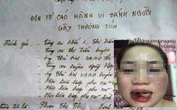 Bị chị dâu tố đánh gây thương tích, Phó Chủ tịch HĐND thị trấn Quỳ Hợp nói gì?