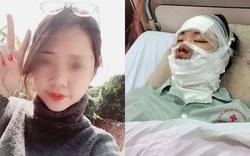 Cô gái bị bỏng nặng vì chùm bóng bay 55 quả phát nổ