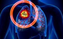 Trắc nghiệm: Không hút thuốc lá cũng có thể bị ung thư phổi, đâu là nguyên nhân?