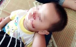 Sự thật câu chuyện bố chém con trai 2 tuổi rách mặt ở Tuyên Quang
