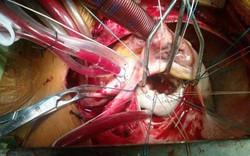 Hà Nội: Vỡ tim khi đang đi ô tô, người đàn ông được bác sĩ BV Việt Đức cứu sống