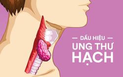 Các triệu chứng sớm đáng chú ý của bệnh ung thư hạch: Biết sớm một chút, cứu sống cả đời