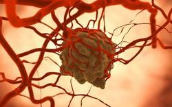 Nhiều nghiên cứu cho thấy, làm đủ 19 việc có ích sau sẽ tránh xa được bệnh ung thư