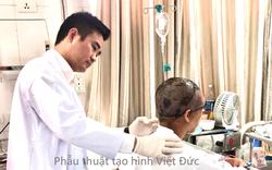 Tai nạn kinh hoang khiến toàn bộ da đầu của người phụ nữ bị giật đứt rời