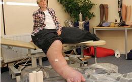 Người phụ nữ khốn khổ với cái chân nặng hơn 1 tạ