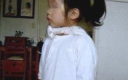 Bé gái 4 tuổi có 2 bộ phận sinh dục