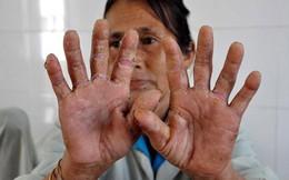 """Chính thức xin trợ cấp gạo cho người dân vùng """"bệnh lạ"""""""