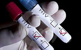 Hành trình chế ngự virus HIV
