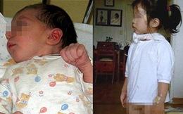 Những em bé có hai bộ phận sinh dục