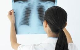 Biết sớm 10 dấu hiệu sau để cứu mình khỏi căn bệnh ung thư phổi