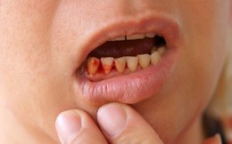 Cách chữa chảy máu chân răng, viêm lợi cực hiệu nghiệm