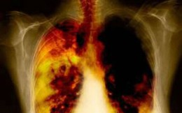 Dấu hiệu cảnh báo ung thư phổi cần đi khám gấp