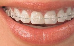 Niềng răng có thể gây chết tủy
