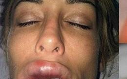 Cô gái sưng vều môi vì bị giòi ký sinh bên trong