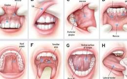 Dễ nhầm lẫn giữa nhiệt, loét miệng với ung thư khoang miệng