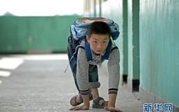 Nghị lực phi thường của 'cậu bé ốc sên' bò đến lớp