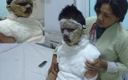 Xót cảnh chàng trai câm điếc bị cháy xém một phần thân thể