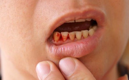 Chảy máu chân răng: Dấu hiệu bệnh ung thư nguy hiểm bạn phải biết