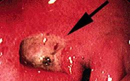 Cảnh báo: 7 dấu hiệu không hề đau đớn nhưng khiến bạn dễ chết sớm