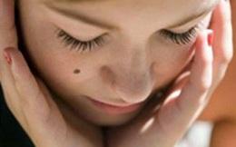 10 dấu hiệu bất thường của nốt ruồi cần khám gấp vì báo bệnh ung thư
