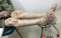 Suy thận vì điều trị gout ở phòng khám đông y Trung Quốc