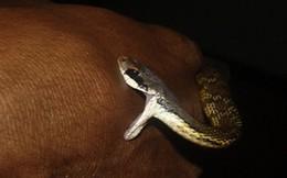 Nguy kịch vì rắn cắn khi đang ngủ trưa