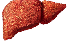 Nhiều người mắc bệnh này, gan xơ đến mức không chữa được mới biết