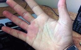 Thấy dấu hiệu này ở bàn tay, kiểm tra xem có bị gan hay không