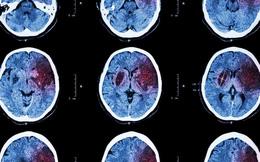 Dấu hiệu nhận ra người sắp bị đột quỵ mà ai cũng phải biết nhằm tránh di chứng để lại