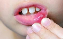 Bài thuốc chữa loét miệng hiệu quả