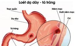 Những người bị viêm, loét dạ dày nên ăn gì để chữa lành bệnh?