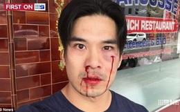 """Tài tử gốc Việt điển trai nhất phim """"Truy sát"""" bị đánh chảy máu mặt ở Australia"""