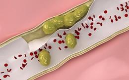 """Những """"liều thuốc"""" đặc trị thông tắc động mạch, """"làm sạch"""" mỡ máu"""