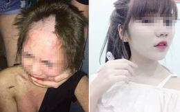 """Cô gái 17 tuổi bị cạo đầu đánh ghen do """"quan hệ nhầm"""" với đàn ông có gia đình"""
