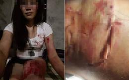 Bị chồng đánh rách thịt, người vợ tự lấy kim khâu vết thương