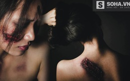 Hình ảnh cô gái Việt bị bạo hành quá đau đớn và ám ảnh