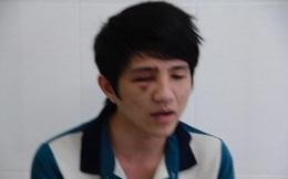 """Thanh tra công an tỉnh xác minh nghi vấn """"CSGT quơ gậy khiến thanh niên chấn thương mắt"""""""