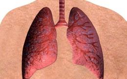 Kể cả người hút thuốc lâu năm, bổ sung chất này sẽ giảm nguy cơ mắc ung thư phổi tới 50%