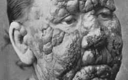 5 căn bệnh chết người và những sai lầm khó hiểu của khoa học