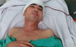 Diễn viên Nguyễn Hoàng phẫu thuật ghép hộp sọ thành công