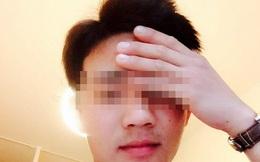 Bộ Ngoại giao thông tin trường hợp du học sinh tử vong ở Nhật Bản