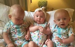 Bà mẹ sinh 3 khiến cả ê-kíp đỡ đẻ ngỡ ngàng vì sinh con ra lại thế này