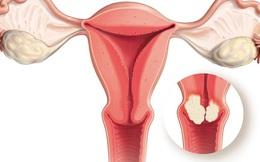 Nguyên nhân không ngờ khiến phụ nữ có thể mắc ung thư cổ tử cung