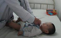 Hãi hùng phát hiện tụ điện trong phế quản bé 8 tháng tuổi
