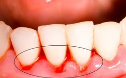 """""""Thuốc đặc trị"""" chảy máu chân răng từ một thứ thường bị vứt vào thùng rác"""