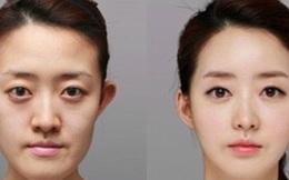 """Chắc bạn chưa biết 10 sự thật phía sau nền """"văn hóa thẩm mỹ"""" của Hàn Quốc này đâu!"""