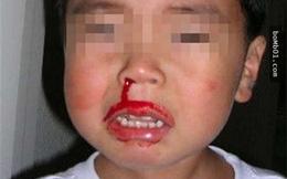 Con trai 2 tuổi qua đời vì chảy máu cam, mẹ hối hận phát điên khi biết nguyên nhân